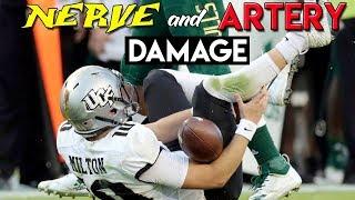 WORST College Football Injury Ever?   Doctor Reviews McKenzie Milton Injury