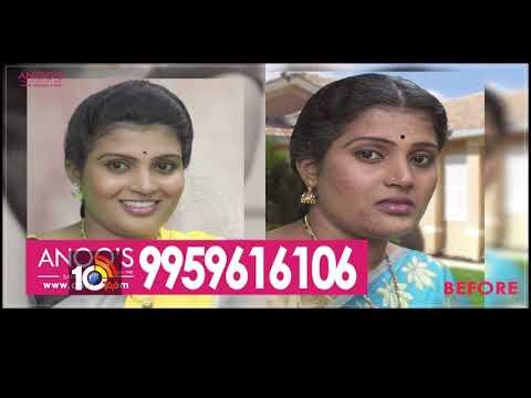 హెయిర్ సమస్యతో బాధపడుతున్నారా..?   Hair Loss & Beauty Tips   Anoo's Salon & Clinic   10TV