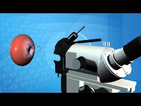 Colposcopy Animation