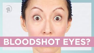 How To Get Rid Of Bloodshot Eyes with The Face Yoga Method http://faceyogamethod.com/