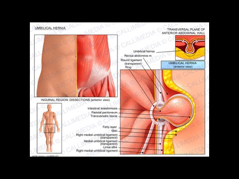 Belly Button Umbilical Hernia Experience with Mesh - YouTube