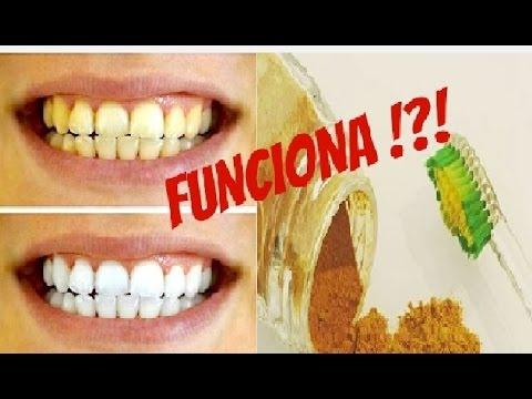 Clareamento Dental Caseiro Com Acafrao E Oleo De Coco Dentes Mais