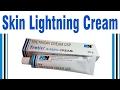 Skin Lightning Cream / Pimples Black Marks Removal / Tretitinoin cream True Review / Hindi