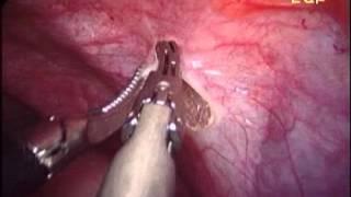 Uterine artery ligation at origin post approach