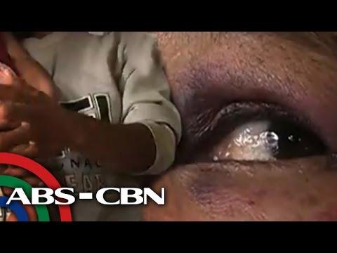 Ginang sa Daraga, Albay tinangka umanong halayin ng kabarangay