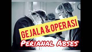 Sembuh Total Abses Perianal Fistula Ani - Awal mula terkena sakit Abses Perianal Mohon bantu SUBSCRI.