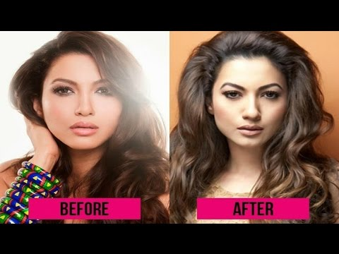 Tv Actress Before And After Plastic Surgery Gauhar Khan