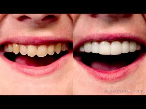 Press On Veneers in 7 days - Amazing Up Close Review Pictures