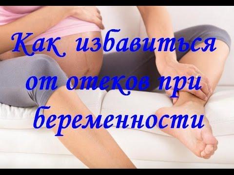 Как избавиться от ОТЕКОВ при беременности
