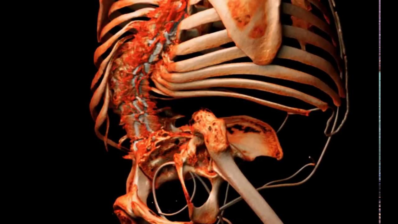 Spina Bifida Skeletal Anatomy - YouTube