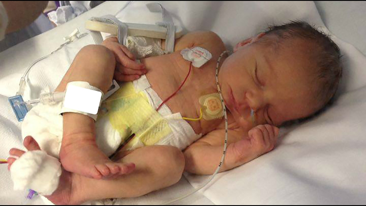 New born babys leg mercilessly broke by hospital worker