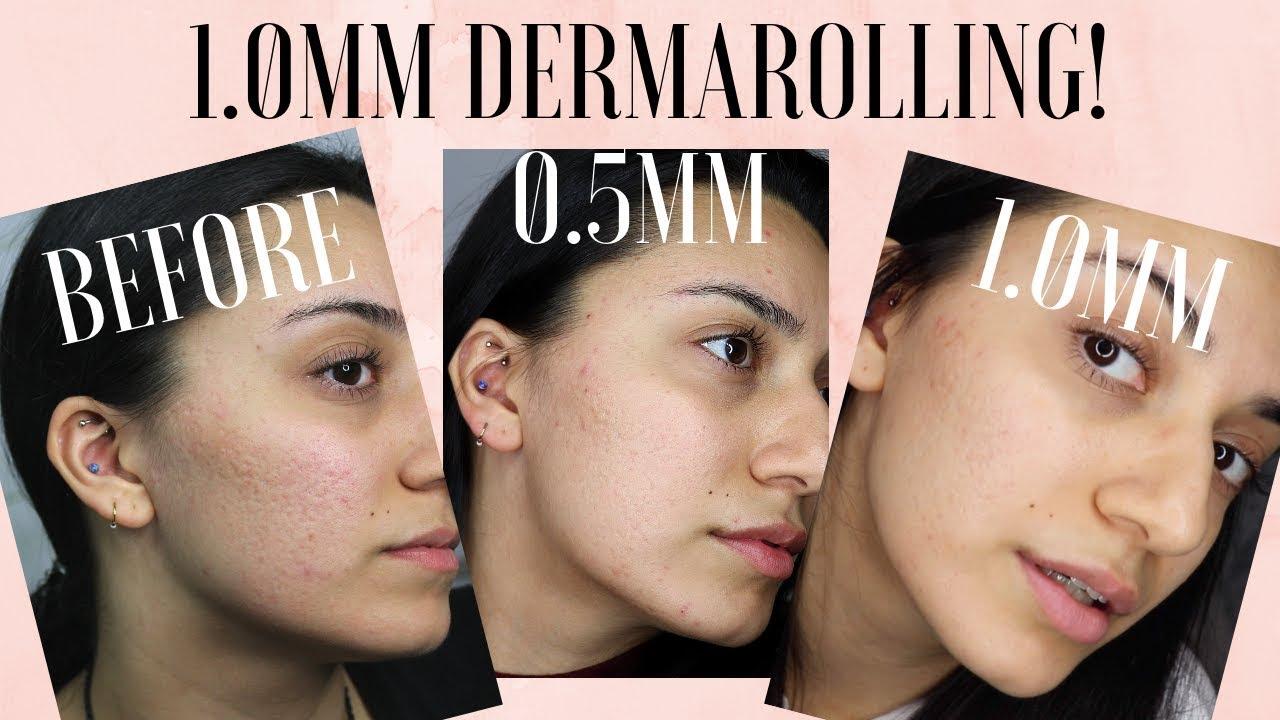 dermaroller 1 mm how to use