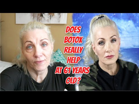 Does Botox really help at 61 years old??? - Dysport injection review for crows feet & 11's - bentlyk from YouTube · Duration:  13 minutes 26 seconds