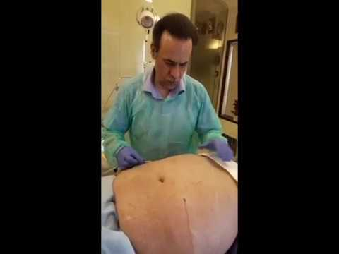 Prof. Dr. Ikram Ullah Khan doing Treatment to reduce the belly fat from Cynosure Cellulaze Laser