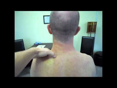 Neck Strain fixed with two Manual Therapy treatments