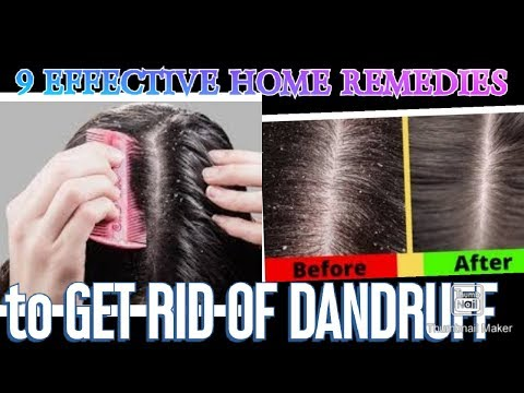 9-effective-home-remedies-to-get-rid-of-dandruff-naturally