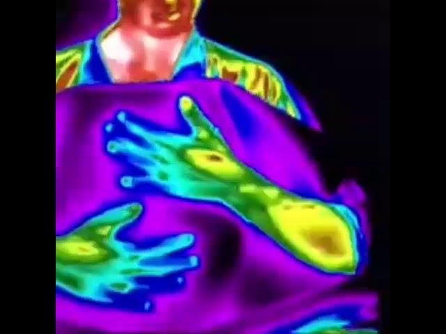 Acupuntura, Shiatsu e imágen termografíca