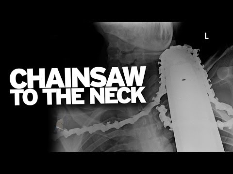 How to Survive a Chainsaw to the Neck