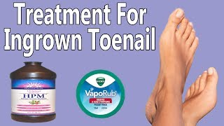 How To Treat Ingrown Toenail At Home - Cure For Toenail Fungus