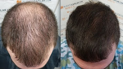 3101 FU'S. Hair Transplant by FUE Technique. Injertocapilar.com. 949/2013
