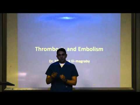 مجاضرة Thrombosis & Embolism شرح مجدي - 1
