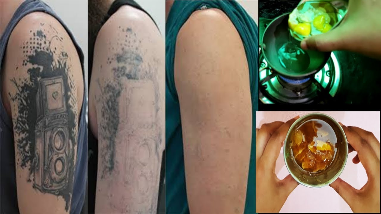 कुछ दिन में टैटू मिटाने का तरीका | How to Remove Permanent Tattoo | Remove Tattoo at Home - YouTube