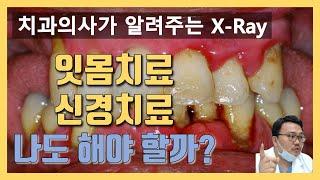 치과 엑스레이 보는법. 치과 가기전에 꼭 보고 가세요. (잇몸치료, 신경치료)