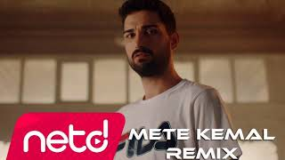 İdo Tatlıses - Bileklerime Kadar Acıyo (Mete Kemal Remix)