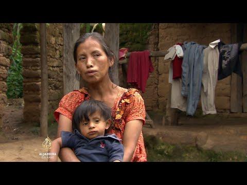 Siromaštvo i pothranjenost najveći problem Gvatemale