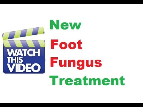 How To Get Rid of Foot Fungus From Toe Toenail Fast Remedy