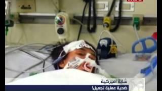 Prime Time News - 09/02/2014 - شابة اميركية ضحية عملية تجميل