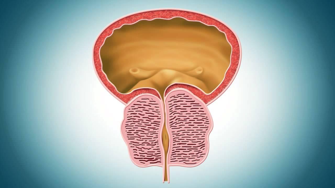 ¿Cuál es mejor para la prostatitis flomax o la doxazosina?