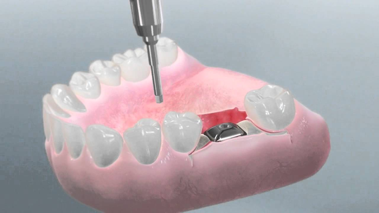 molar tooth implant - 1280×720
