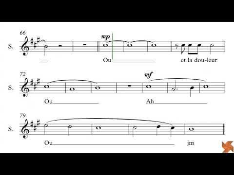 Caliciuri, Bruno - 1000 Coeurs Debout - Guide Voix - Sopranos