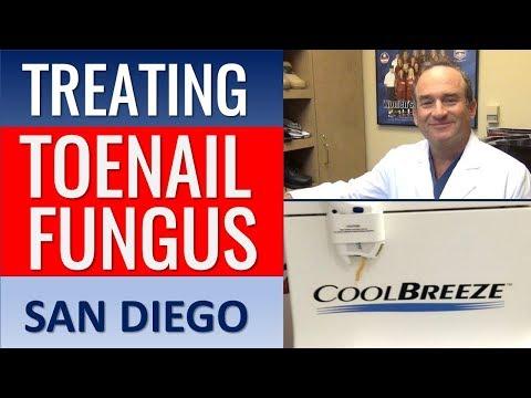 Toenail Fungus San Diego