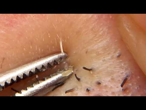 Blackheads removal under nose with tweezers #3