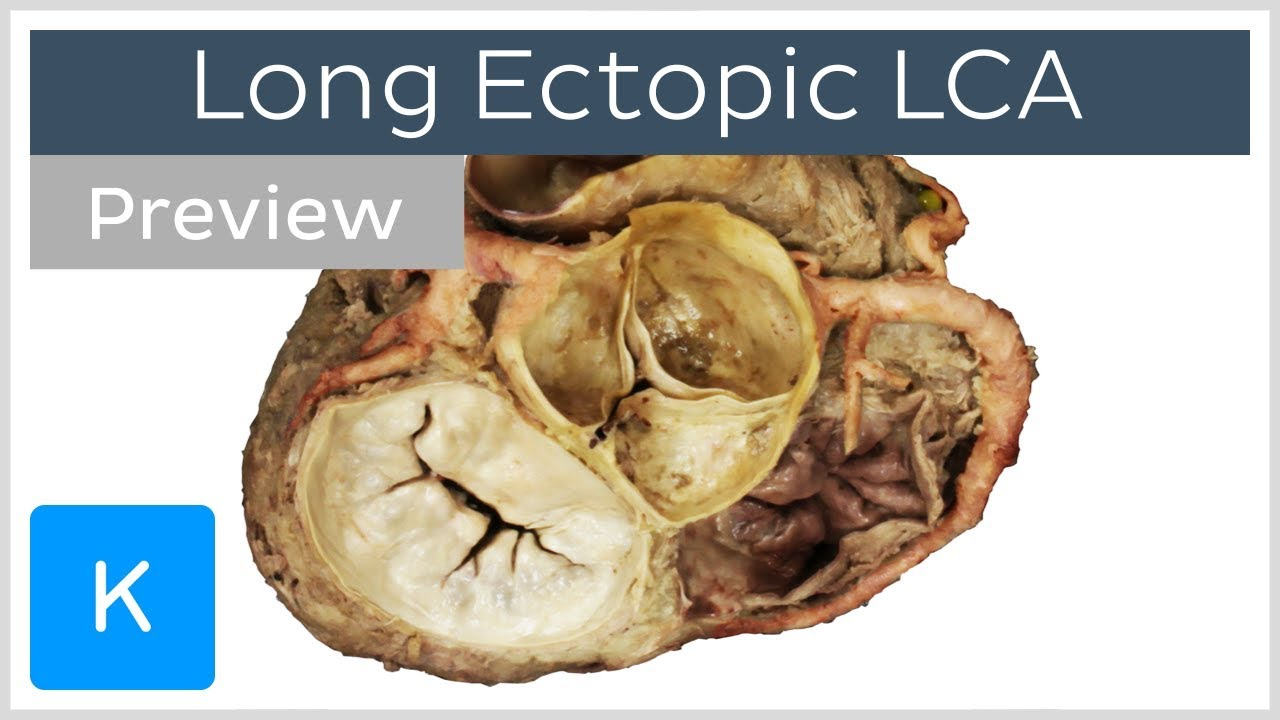Long Ectopic Left Main Coronary Artery Preview Clinical Anatomy