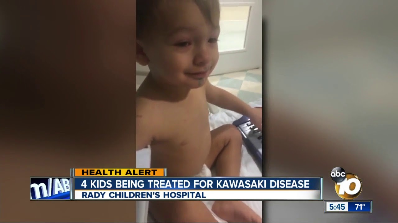 4 San Diego kids being treated for Kawasaki disease