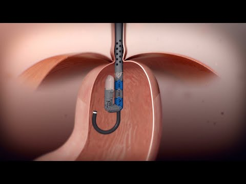 TIF Procedure