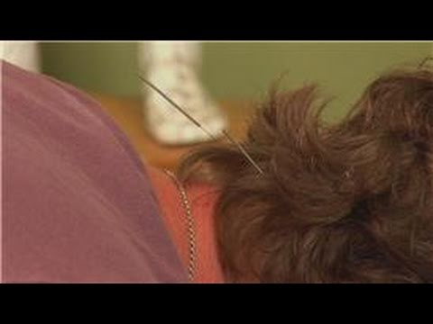 Acupuncture Treatments : Acupuncture for Neck Pain