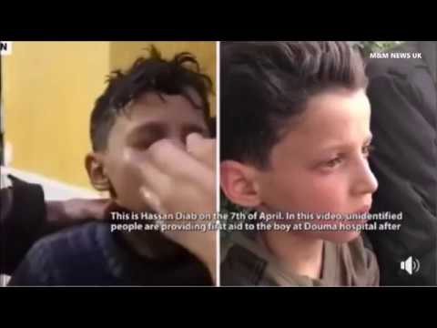 11-yr-old Syrian boy Hassan Diab says Chemical Attack in Douma Staged