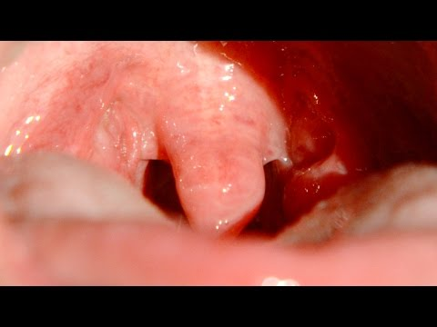 Slow Mo Gargling Uvula - The Slow Mo Guys