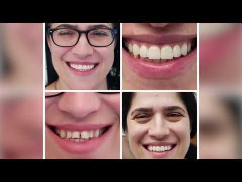 יישור שיניים באמצעות ציפויי חרסינה אסתטיים