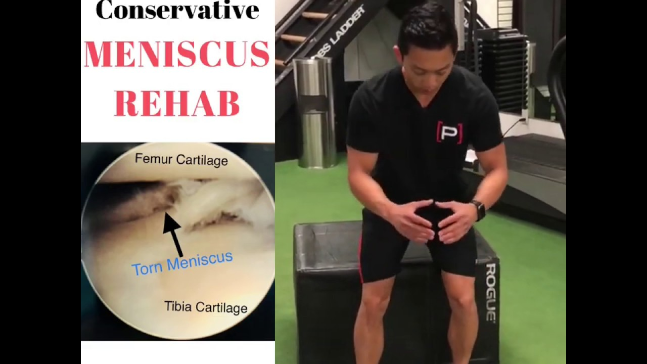 13+ Conservative, Non Operative Meniscus Tear Early Rehab   Not All Tears  Require Surgery