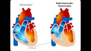 Lab or Diagnostic Findings: Tetralogy of Fallot, Right Ventricular Hypertrophy