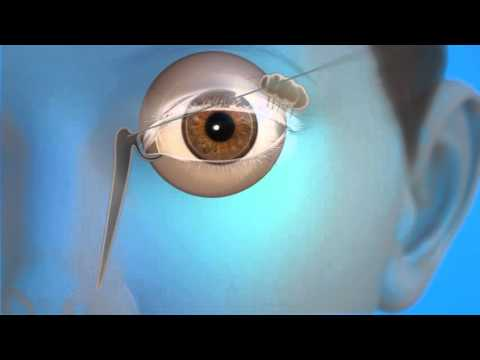 Tear Duct Probing Surgery