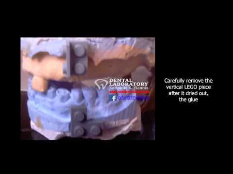 Karipidis Occlusion Markers Alignment (KOMA) Technique.  3d cad cam dental
