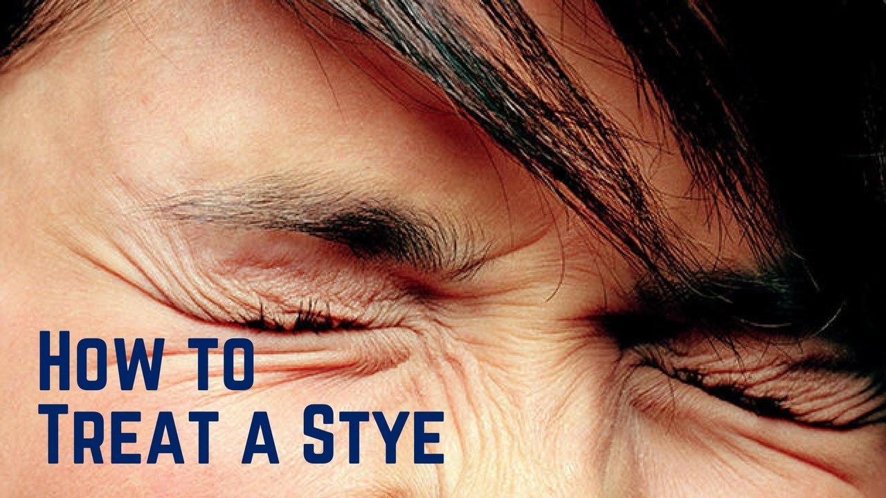 how to treat a stye in your eye - YouTube