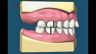 видео Лазерное отбеливание зубов и реставрация дефектов зубов