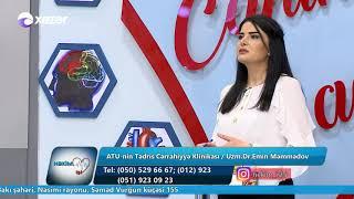 Kişilərdə sidiyə çıxma problemləri - Həkim İşi 22.02.2019